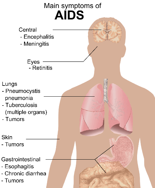 AIDS Symptoms SimpleMed