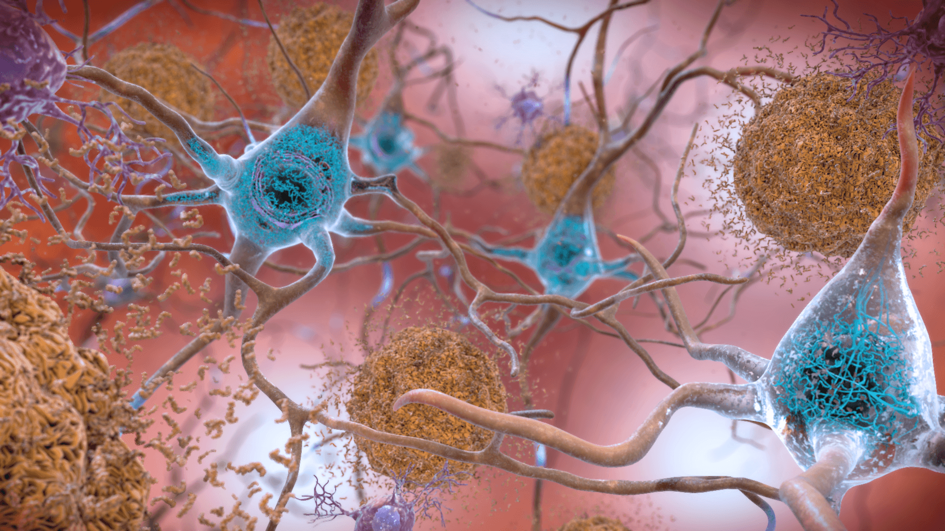 Beta-amyloid and Tau Proteins in Alzheimer's Disease SimpleMed