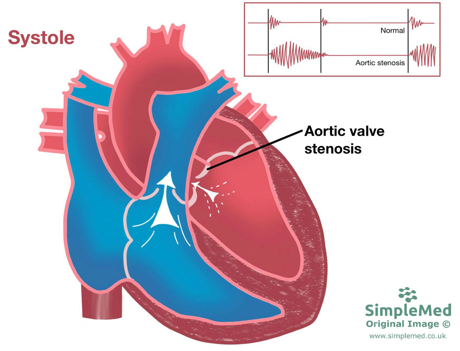 Aortic Valve Stenosis SimpleMed
