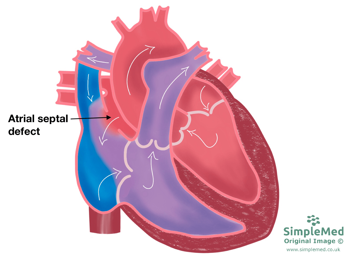 Atrial Septal Defect SimpleMed