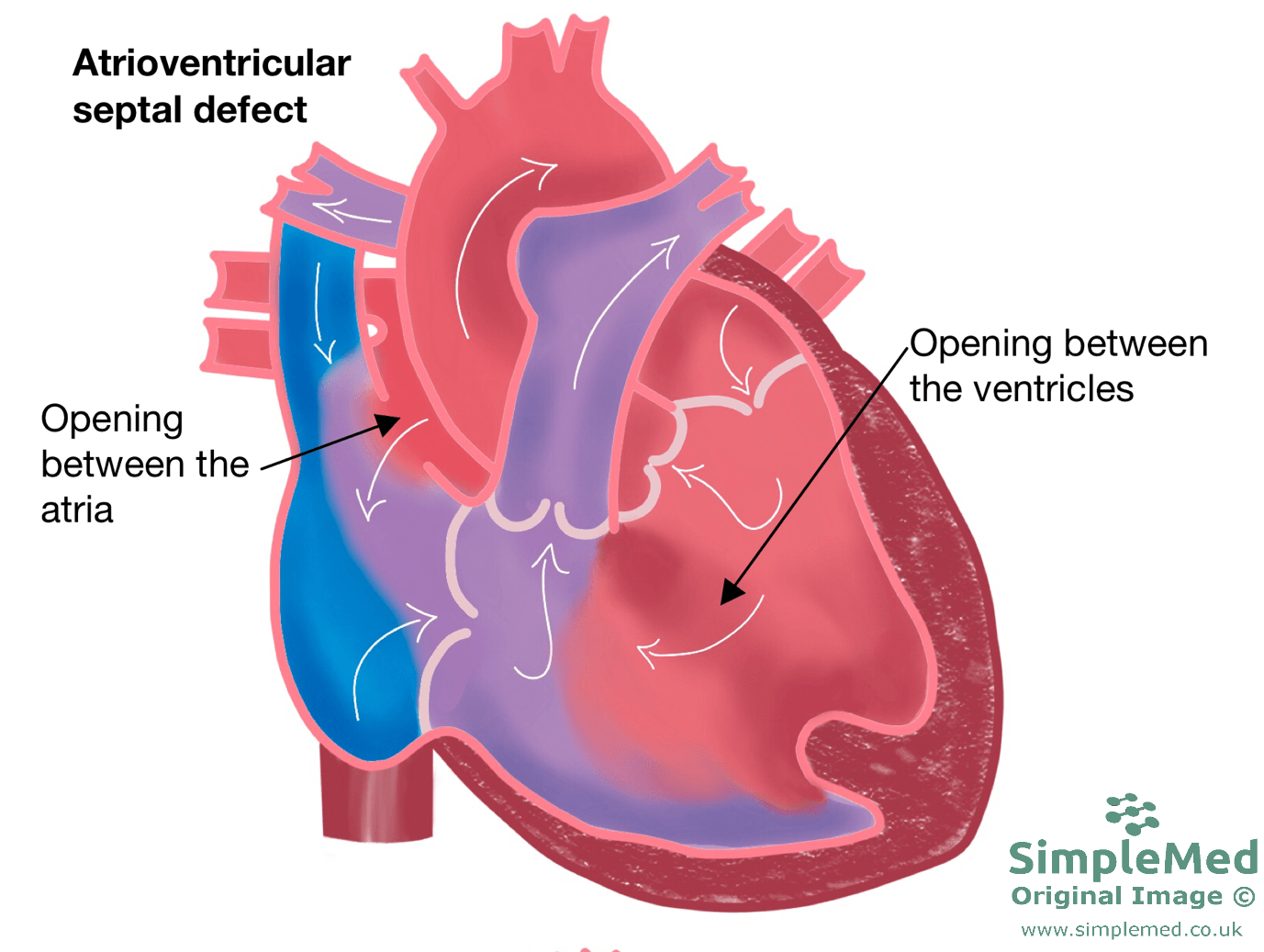 Atrioventricular Septal Heart Defect SimpleMed