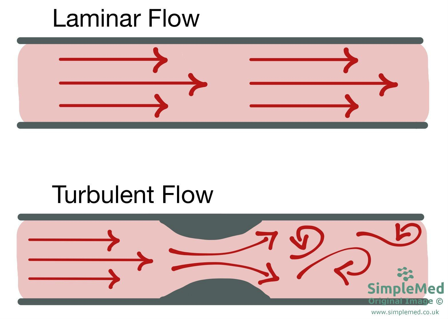 Blood flow in blood vessels - Laminar and Turbulent flow SimpleMed