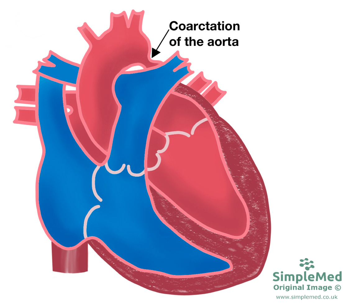 Coarctation of the Aorta SimpleMed
