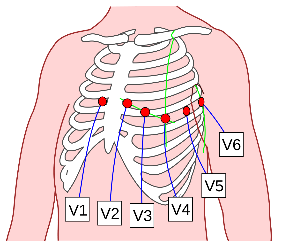 ECG Chest Lead Positions for 12 Lead ECG SimpleMed