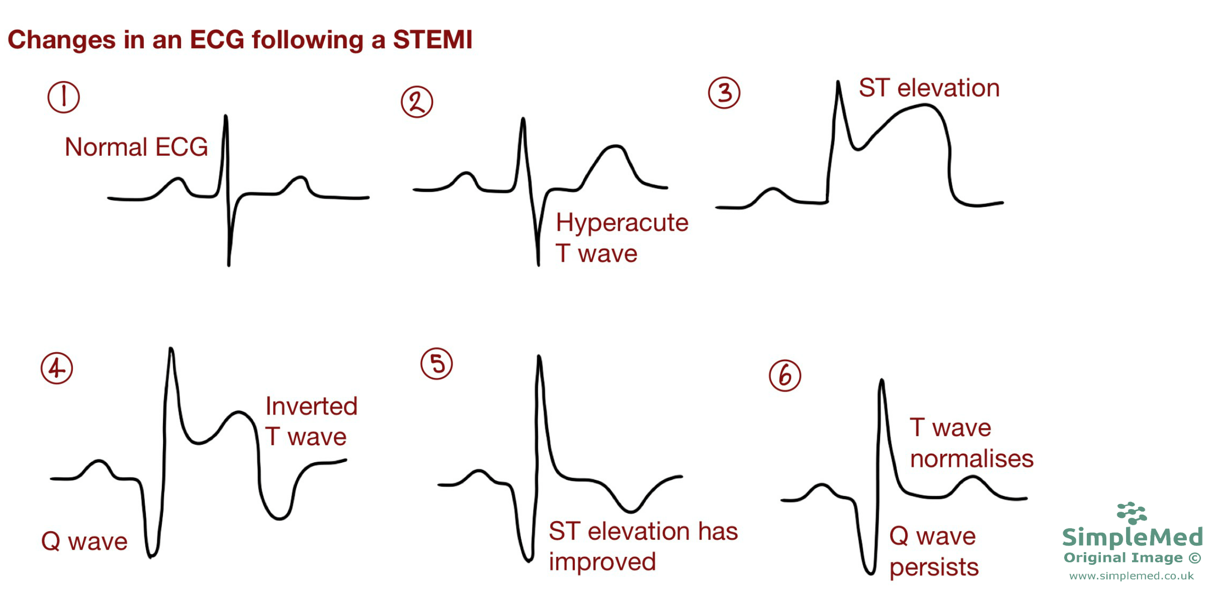 ECG changes in a STEMI over time SimpleMed