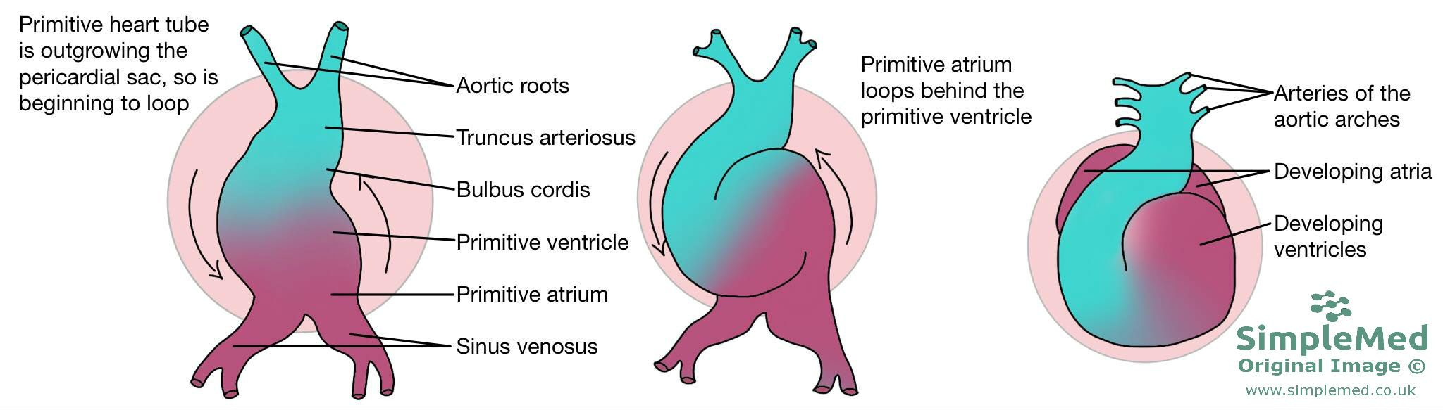 Heart Twisting Embryology SimpleMed