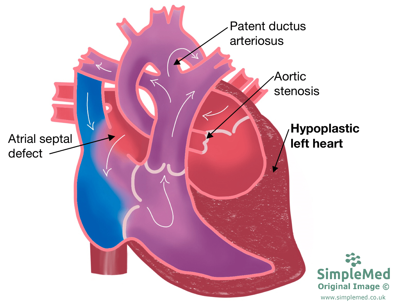 Hypoplastic Left Heart SimpleMed