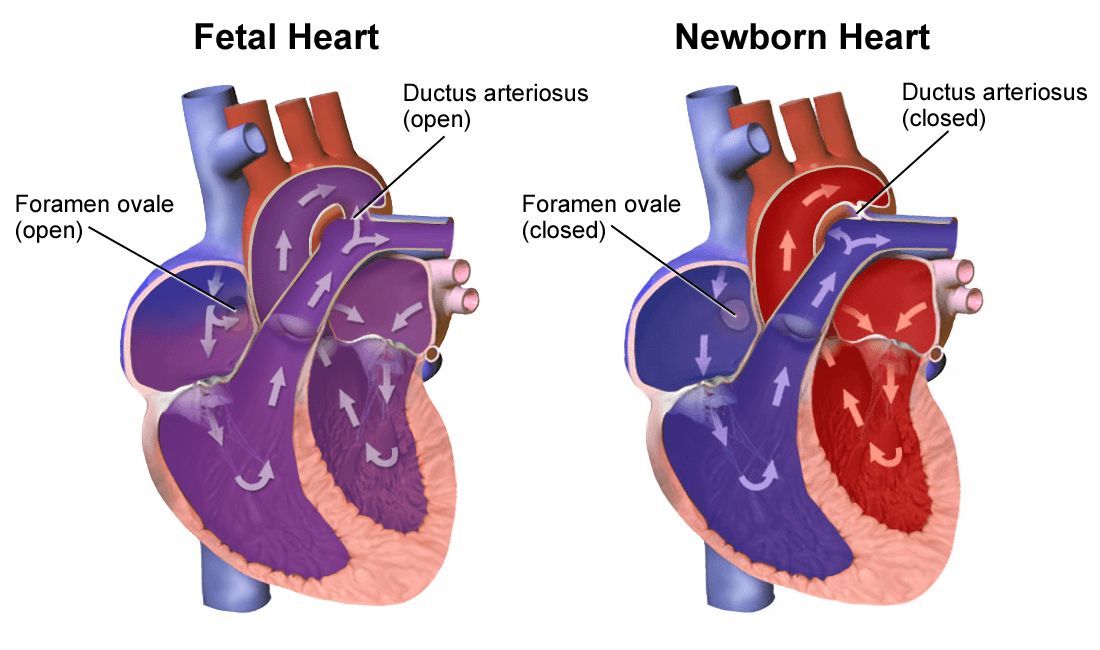 Changes in Heart After Birth SimpleMed