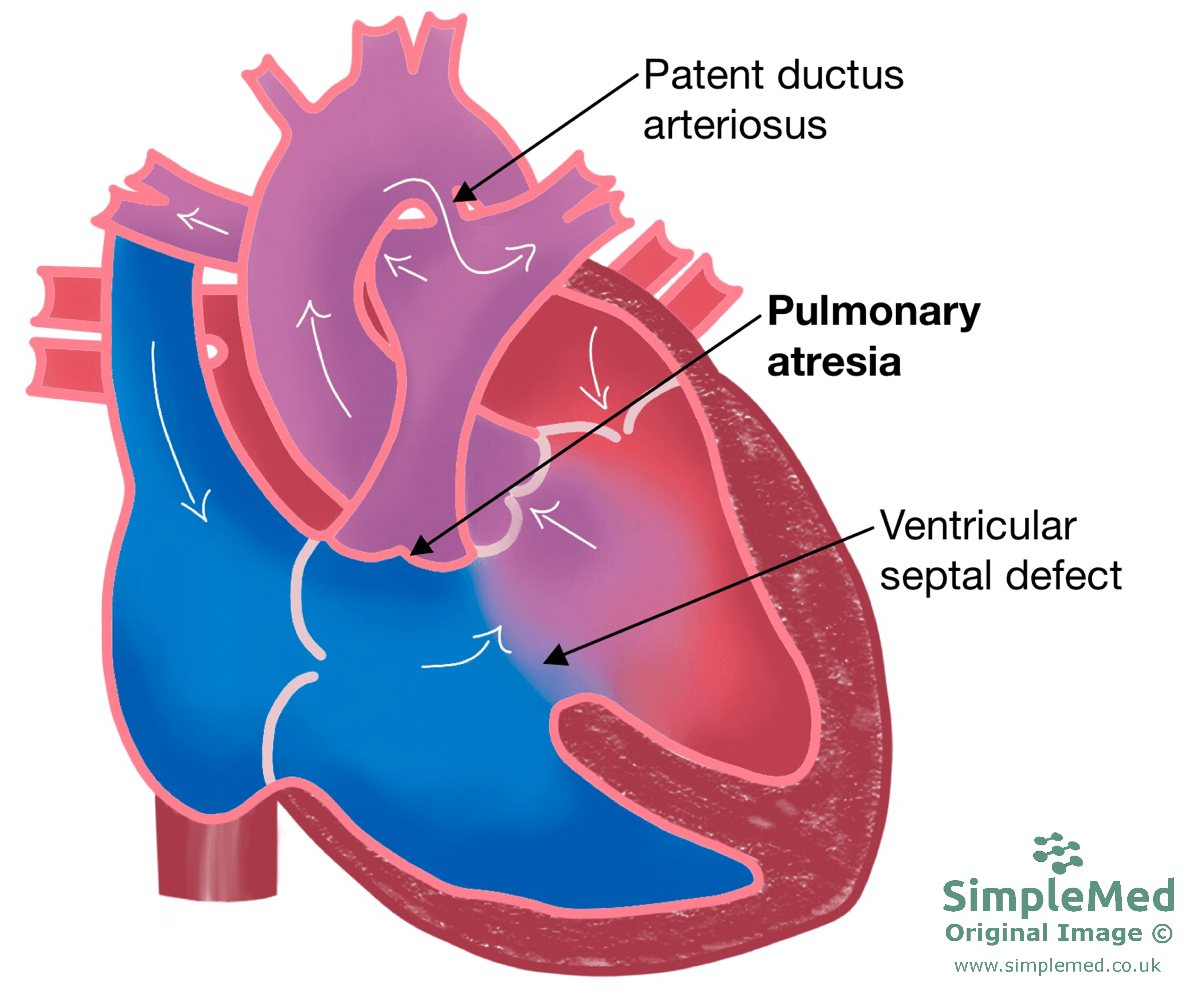 Pulmonary Atresia with Ventricular Septal Defect SimpleMed