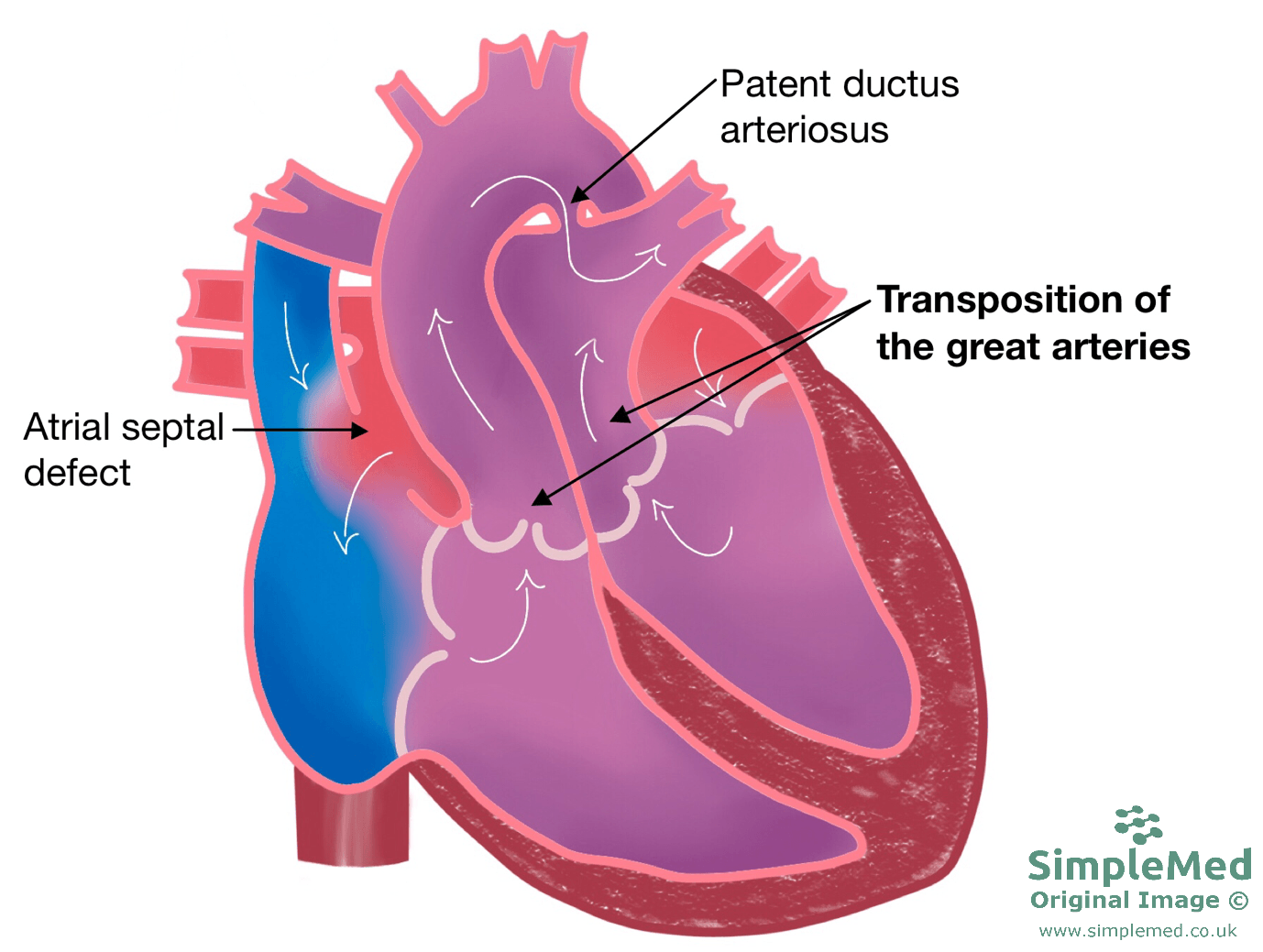 Transposition of the Great Arteries SimpleMed