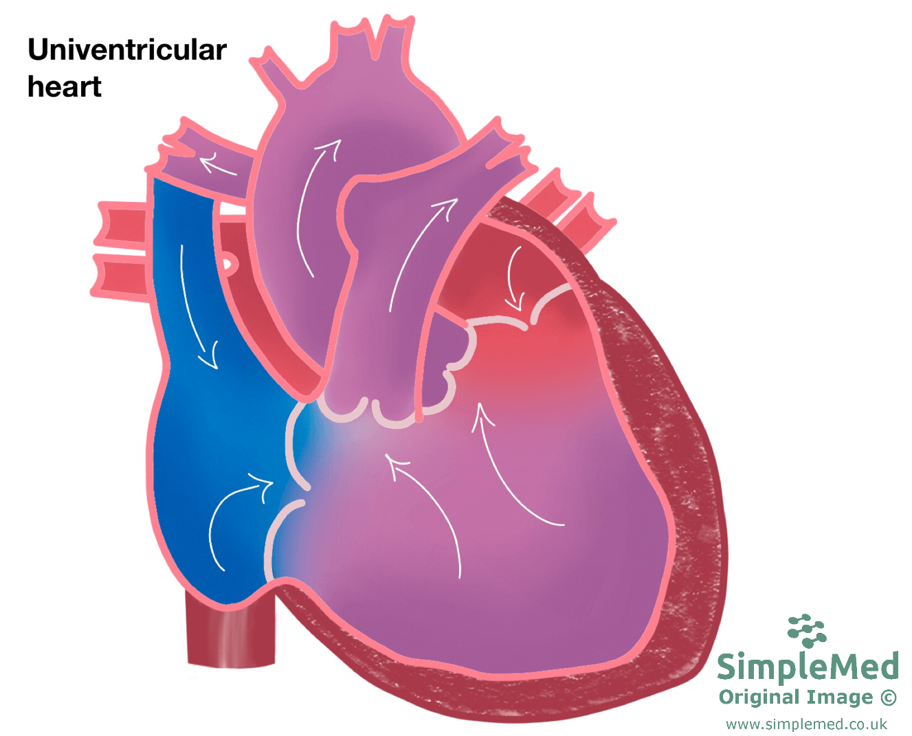 Univentricular Left Heart SimpleMed