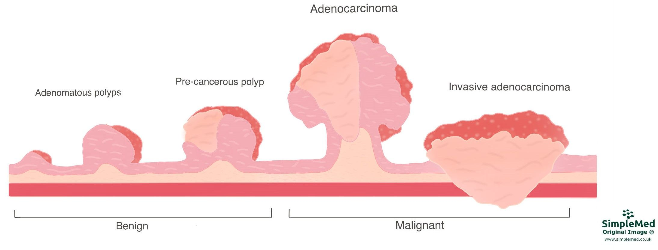 Carcinoma to Adenocarcinoma Progression SimpleMed