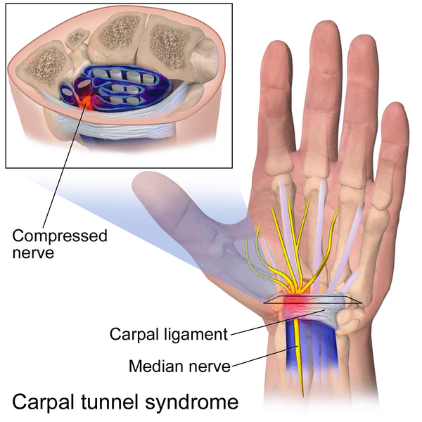 Carpal Tunnel Syndrome SimpleMed