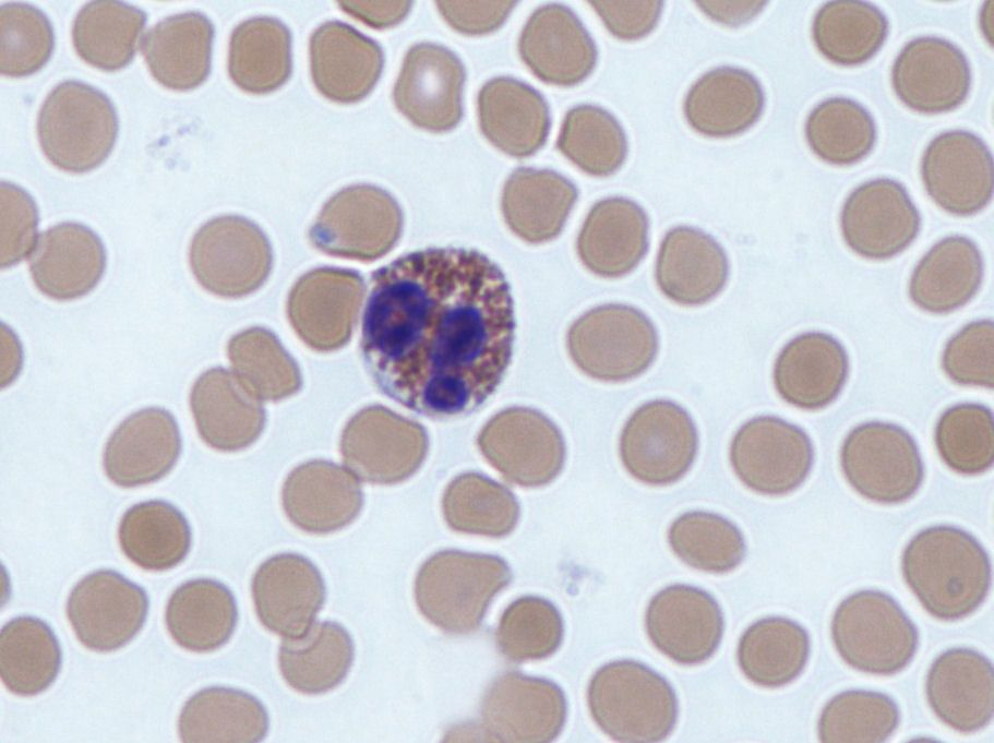 Eosinophil Histology SimpleMed