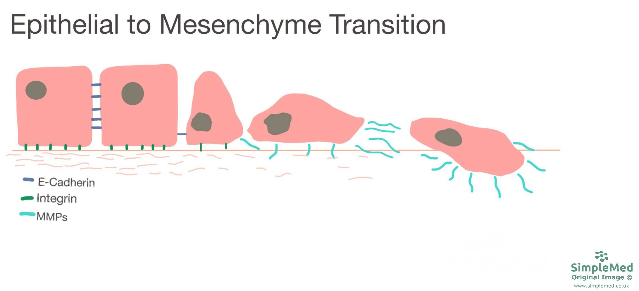 Epithelial to Mesenchyme Transition SimpleMed