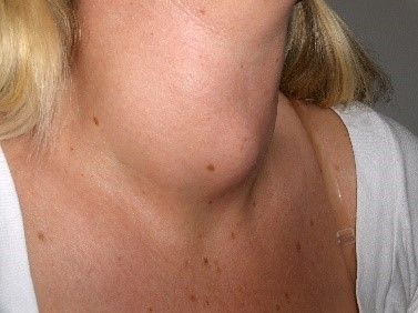 Goitre female enlarged thyroid SimpleMed