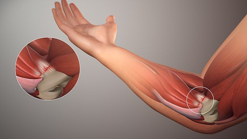Golfers Elbow/Medial Elbow Tendinopathy SimpleMed
