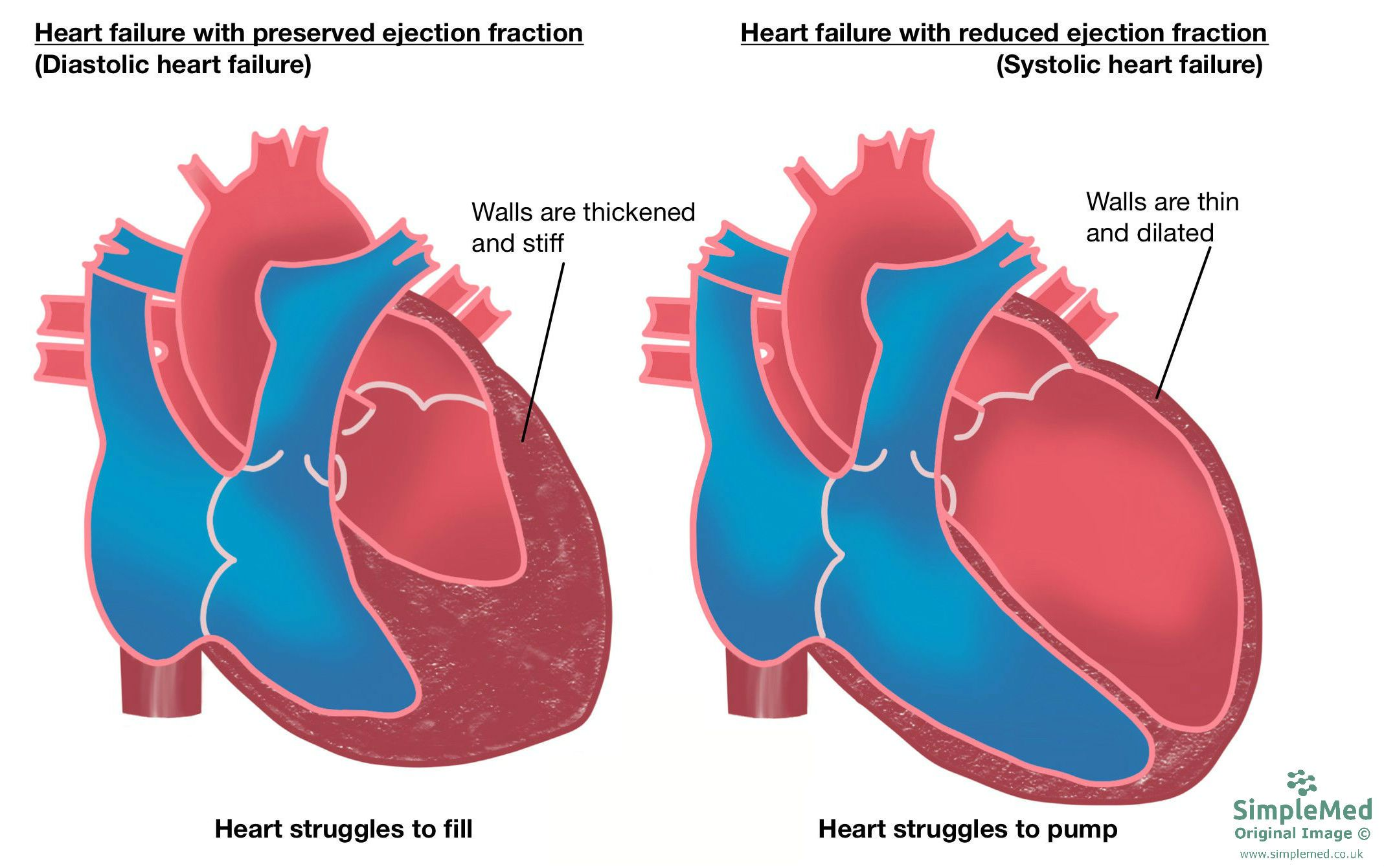 Heart Failure Classification SimpleMed