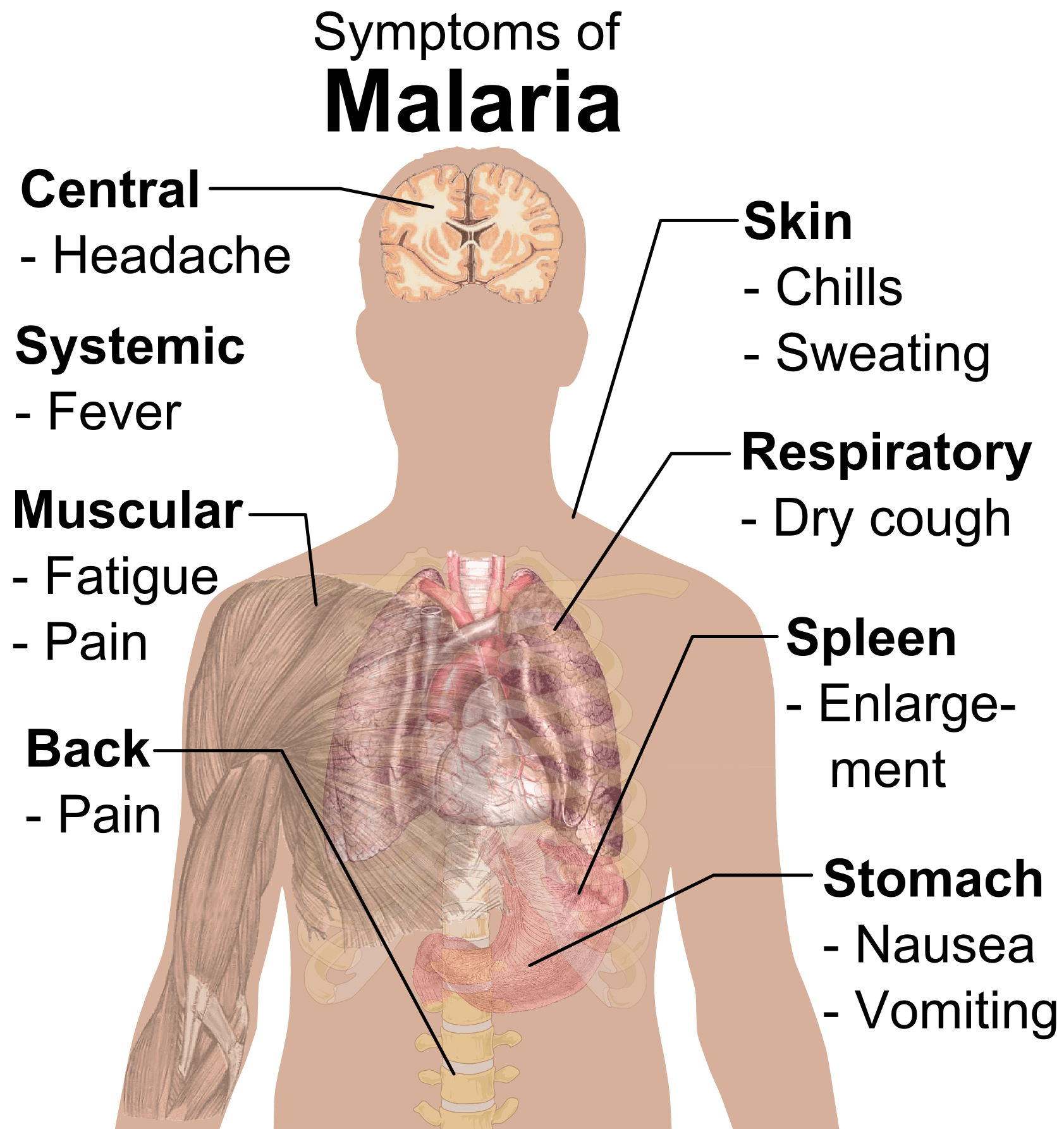 Symptoms of Malaria SimpleMed