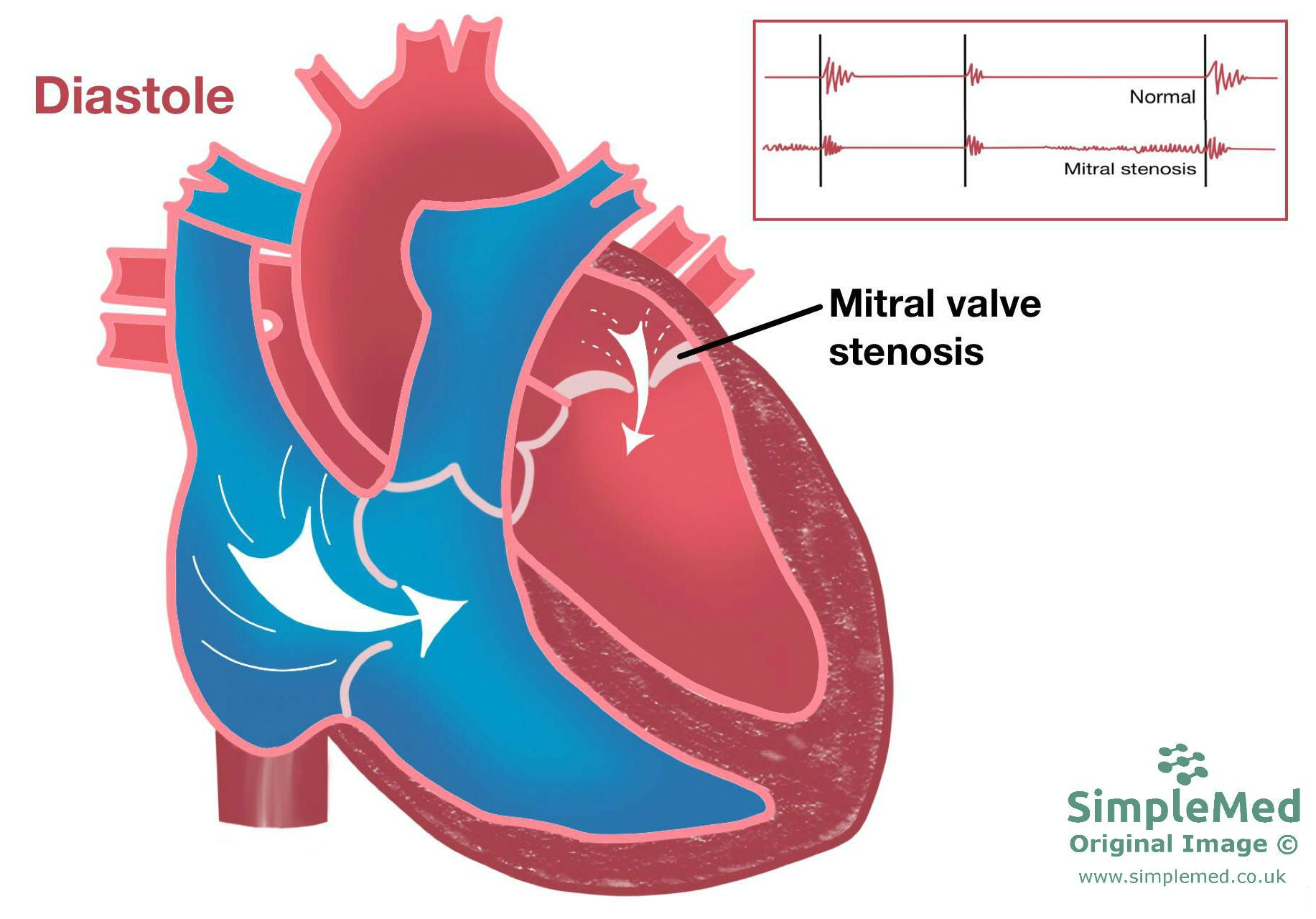 Mitral Valve Stenosis SimpleMed