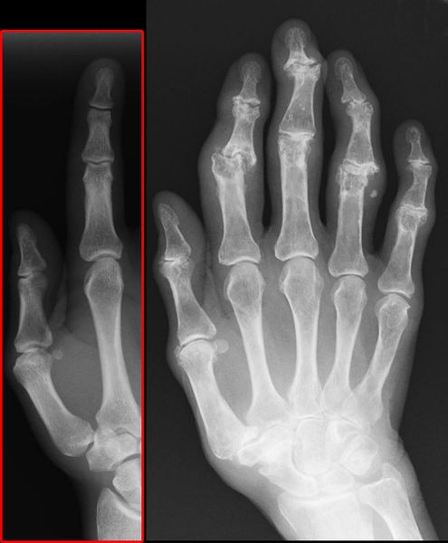 Osteoarthritis Affecting the Fingers With Heberden's and Bouchard's Nodes SimpleMed