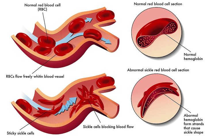 Sickle Cell Anaemia Blocking Blood Vessels SimpleMed