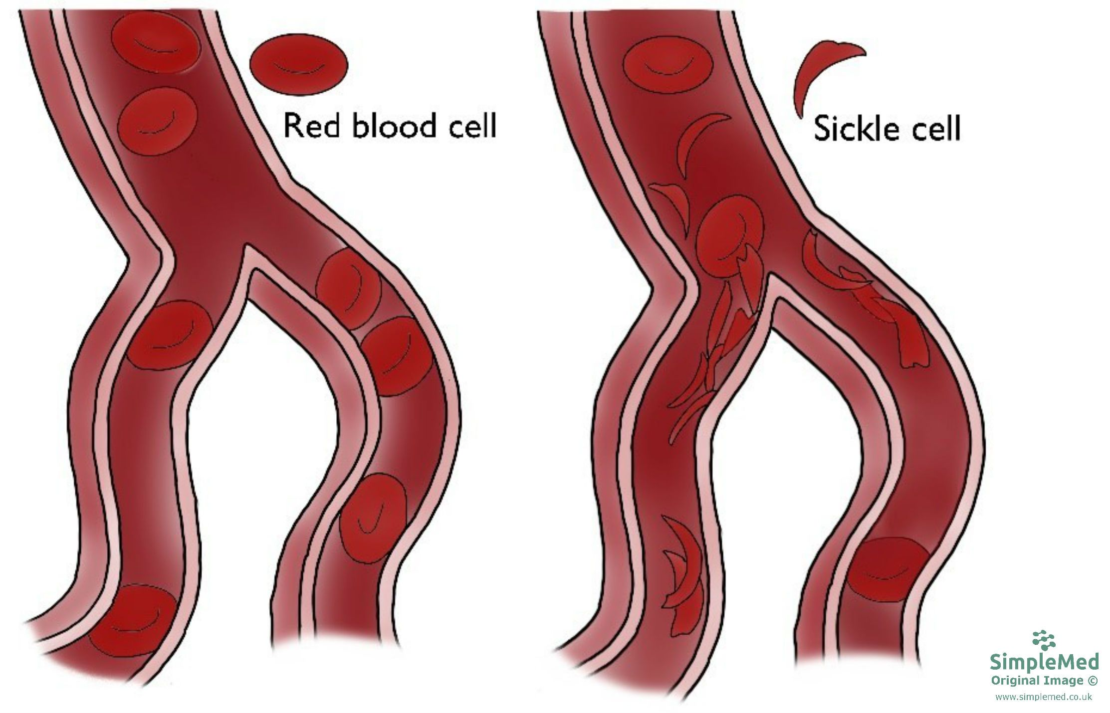 Sickle Cell Anaemia Blood Vessels Diagram SimpleMed