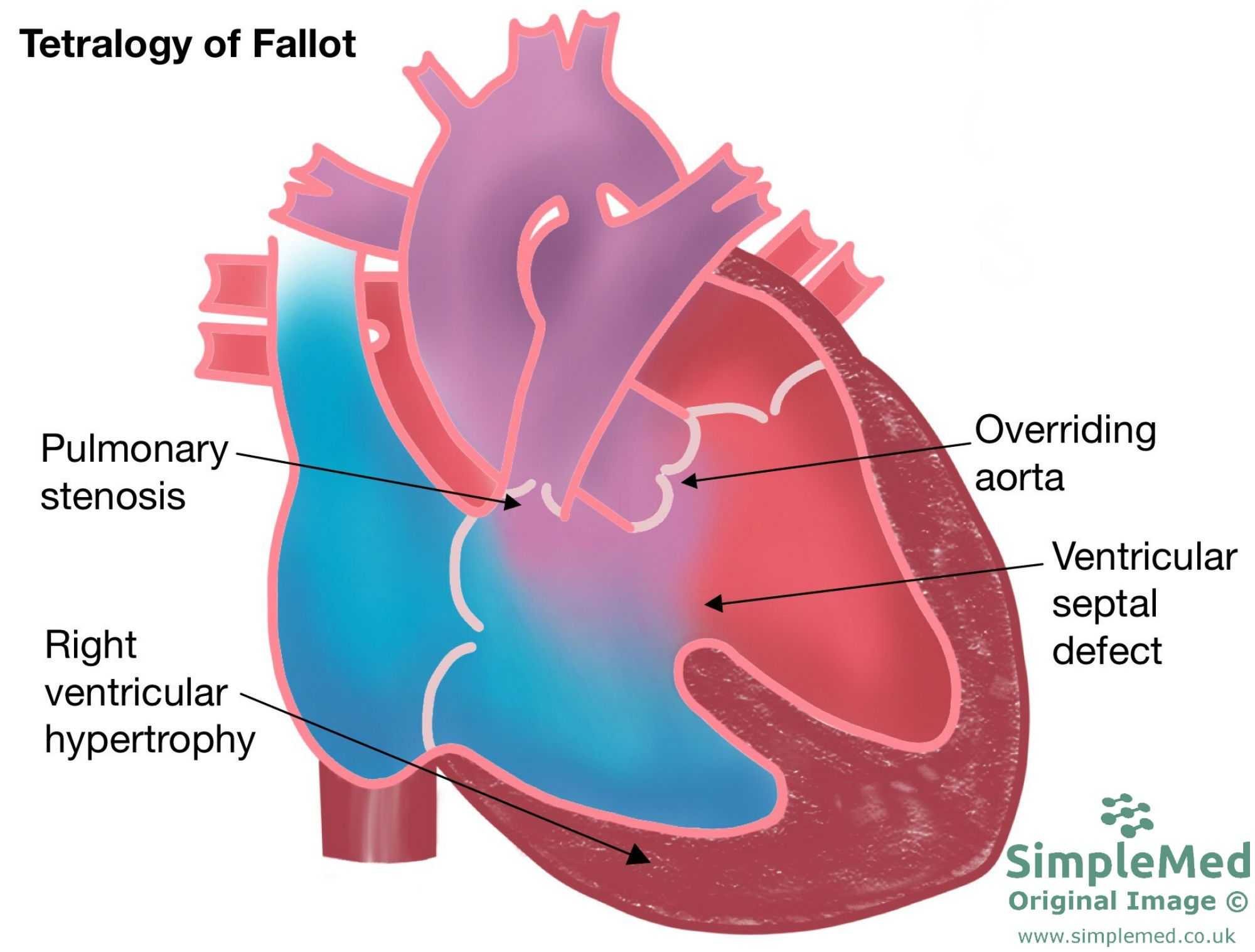 Tetralogy of fallot congenital heart defect SimpleMed