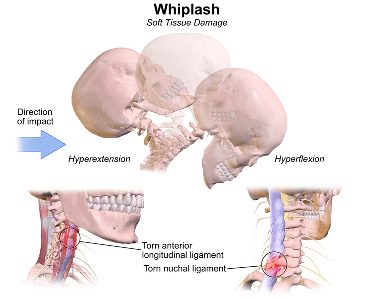 Whiplash SimpleMed
